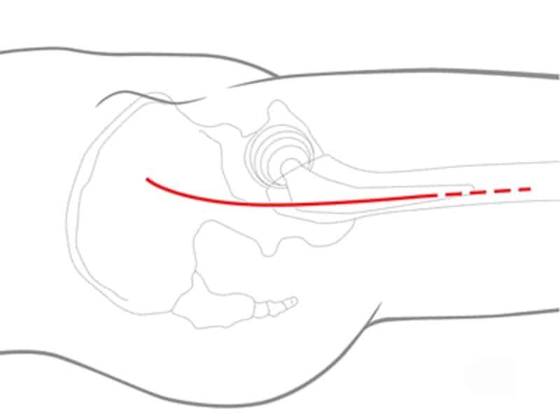 protesi anca mininvasiva