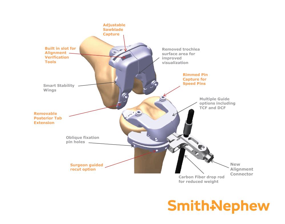 tecniche innovative chirurgia protesica